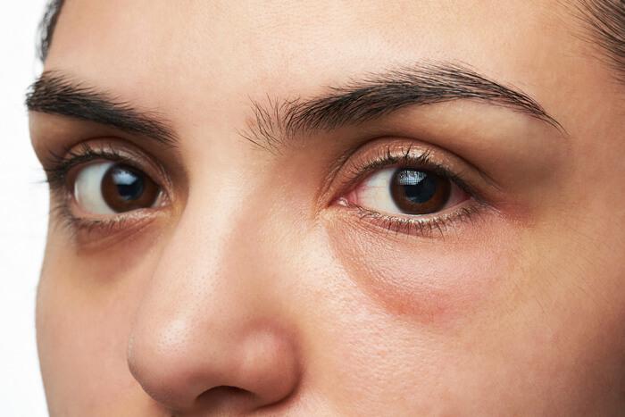 oog wallen