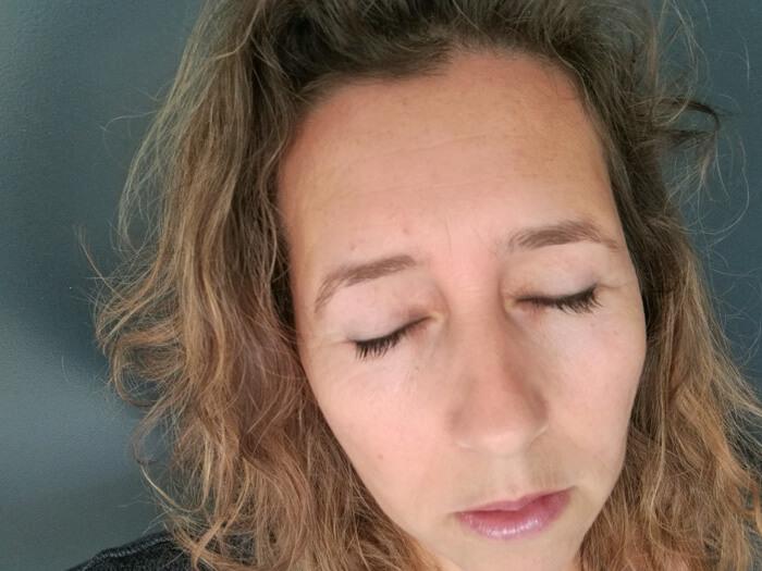 overhangende oogleden litteken na operatie